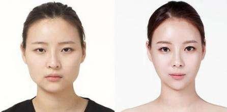溶脂针瘦脸多少钱_溶脂针瘦脸整形手术价格